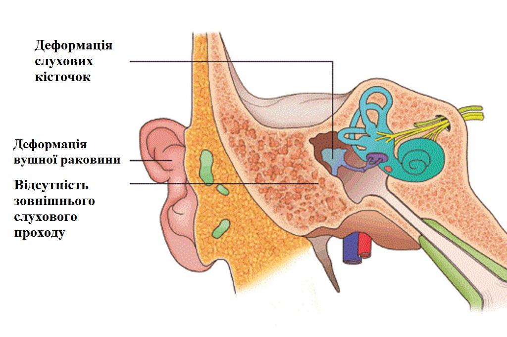 мікротія і атрезія 1